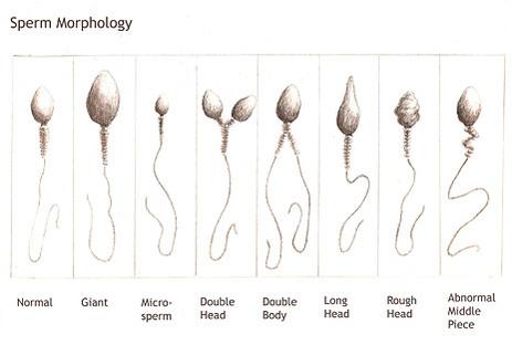 sperm_morph
